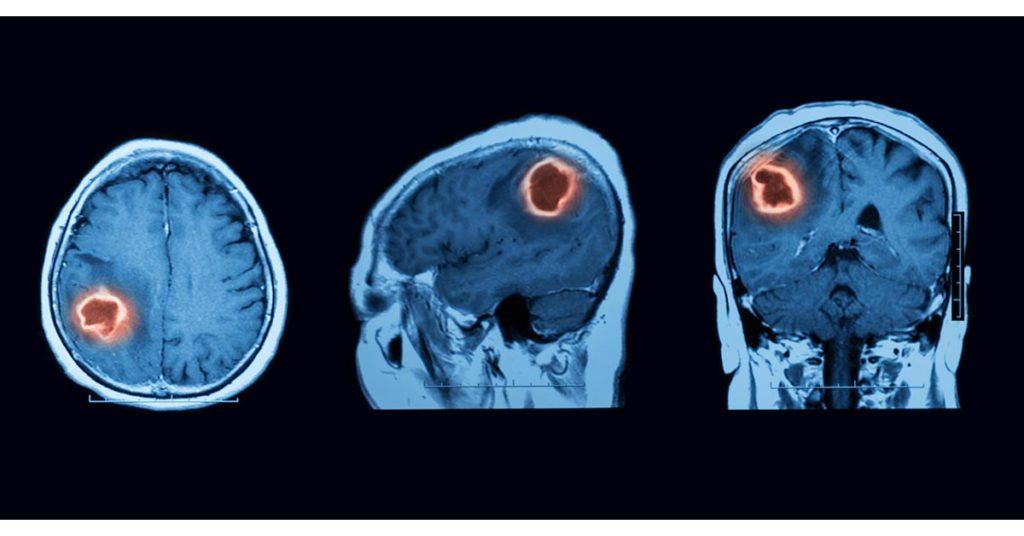 MRI's of brain