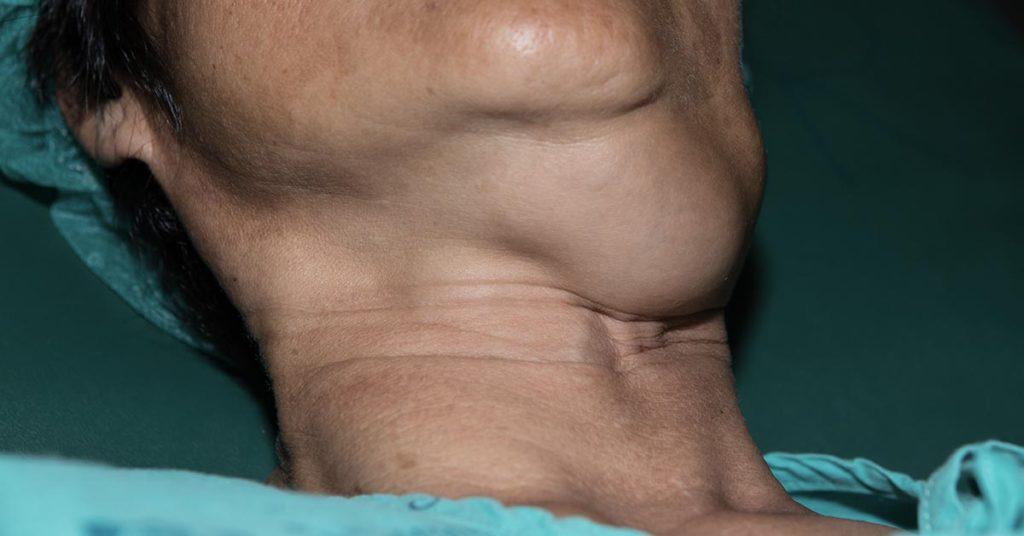 large lump in throat
